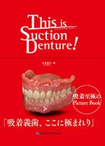 「This is Suction Denture!」吸着義歯、ここに極まれり
