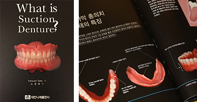 「What is Suction Denture?」 韓国語訳版