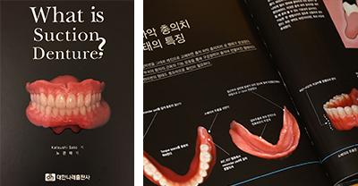 「What is Suction Denture?」 韓国語訳版